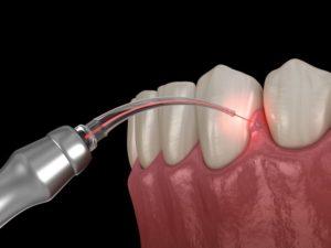 Illustration of gum recontouring in Chesapeake using soft tissue laser