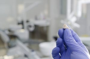 Hand in purple latex glove holding a tooth